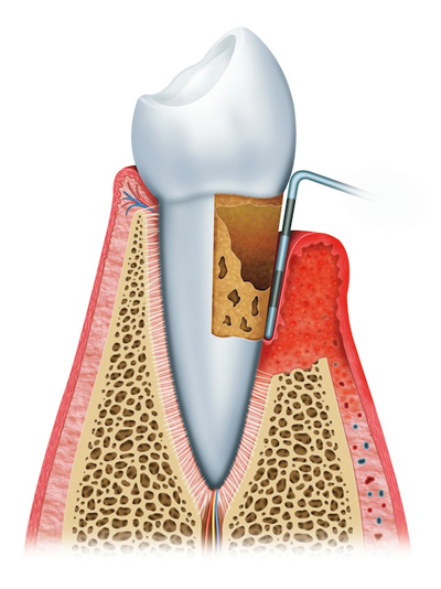 Stages of Gum Disease Overland Park, KS
