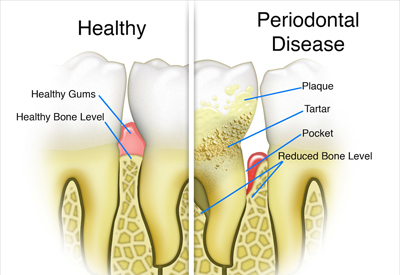 Gum Disease and Tooth and Bone Loss Overland Park, KS
